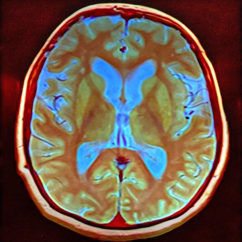 Brain_MRI_103618_rgbca